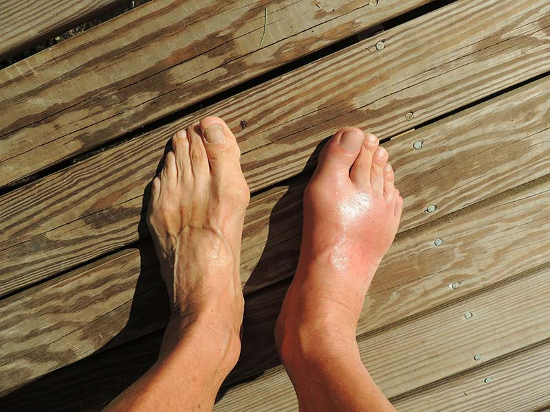 What is Gout - Arthritis Health